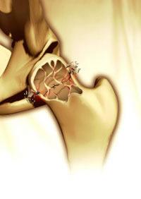 menopozda kemik kırıkları