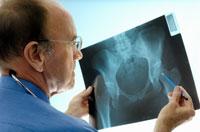 osteoporoz tahlilleri